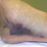 Image of a bruised sprained ankle
