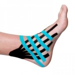 Image of a sprained ankle treated by taping